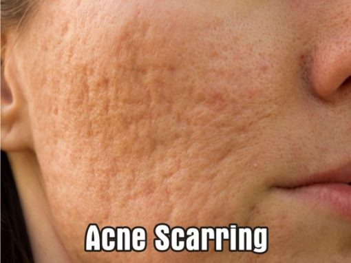 Treatments for Acne and Acne Scarring