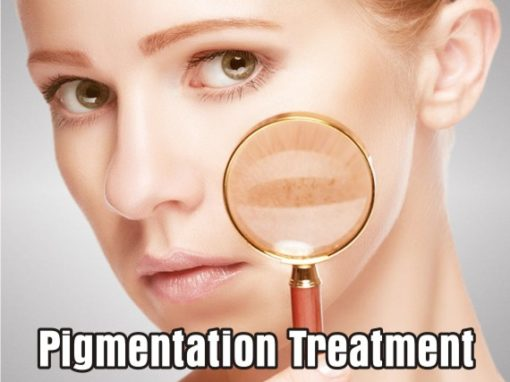 Treatments for excess skin pigmentation and rosacea