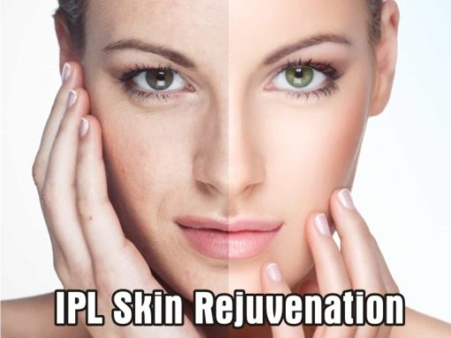 Blemish Treatment and Lightening and Brightening of the skin